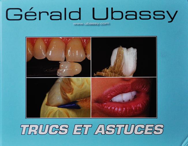 Triki i wskazówki – Trucs et Ascutes